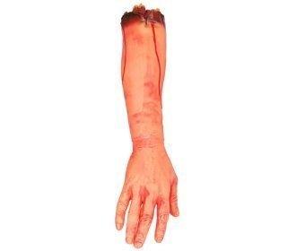 Katkaistu käsi