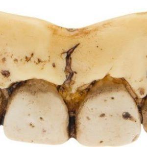 Luurangon hammasrivi